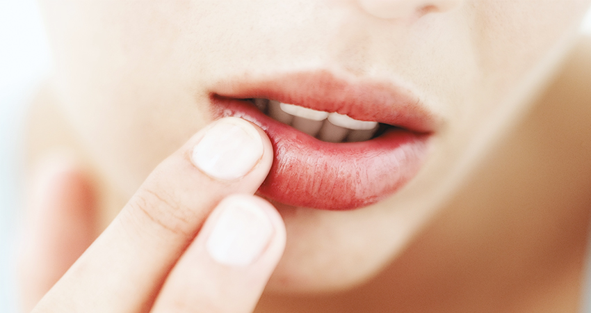 Women places fingers on lips due to pain from dental trauma