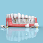 Dental Implants - Frequently Asked Questions