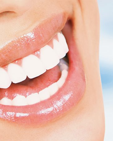 Fast, Safe & Effective Teeth Whitening In Victoria, BC